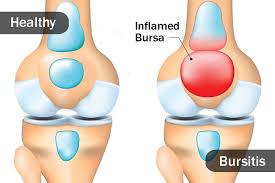 Healthy vs Bursitis